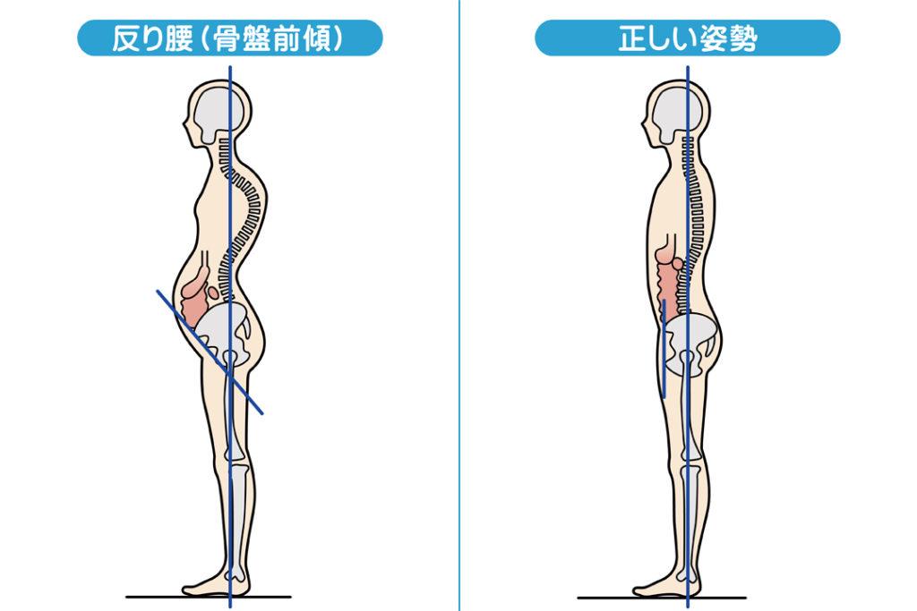 お腹を引き締めたい方のための姿勢改善